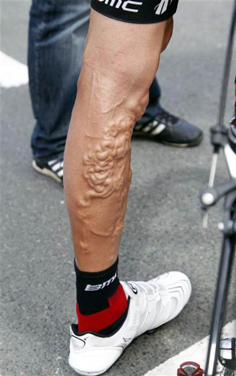 אמריקאי cyclist George Hincapie had a serious case of varicose veins during the 2011 Tour de France.