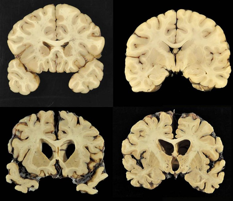 Sekcije from a normal brain, top, and from the brain of former University of Texas football player Greg Ploetz, bottom, in stage IV of chronic traumatic encephalopathy.