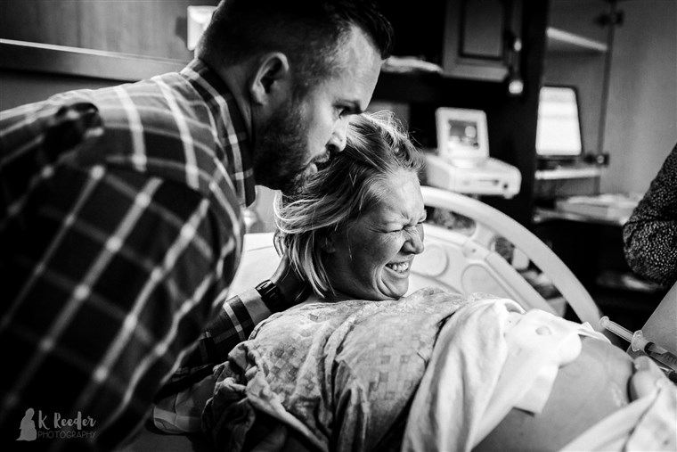 Rausch believes that her contractions being slowed by an epidural, in combination with an hour of pushing, caused her son's misshapen head.