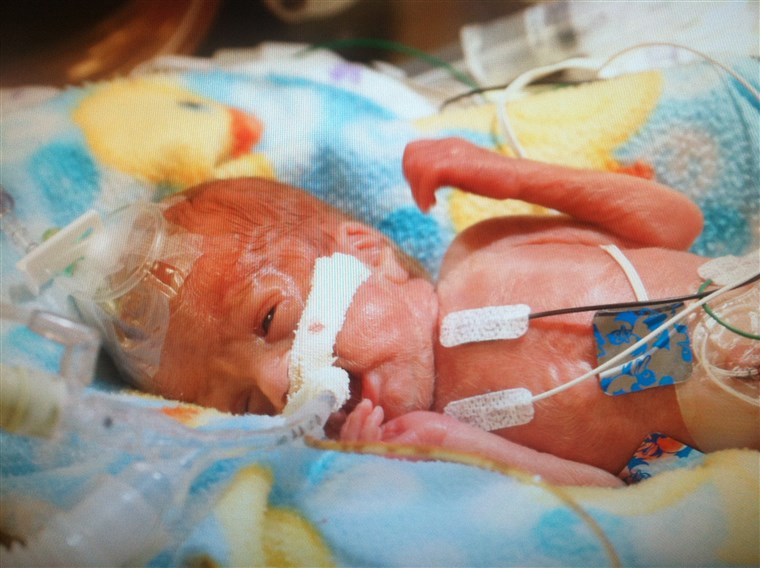 Trevor needed life support when he was born at 23 weeks gestation in August 2014.