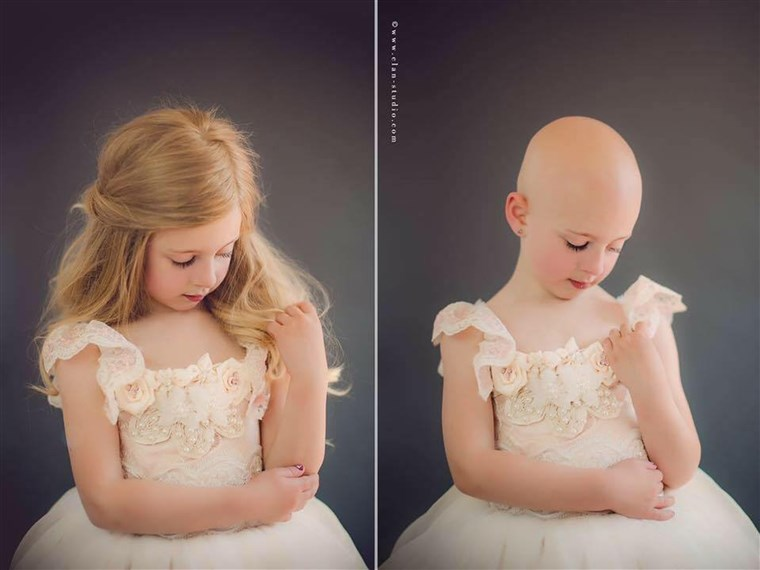 जबकि Riley was born with a full head of hair, she was completely bald by 15 months because of alopecia.
