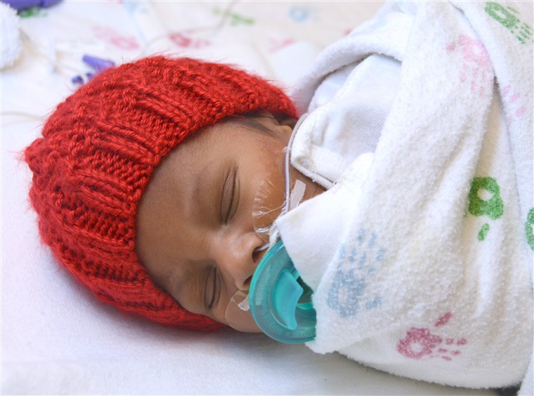 "Mnogi babies born in February are receiving red caps as part of the ""Little Hats, Big Hearts"" project, which draws attention to heart disease."